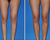 Picture of before and after calf implants